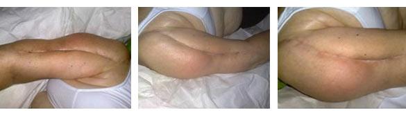 Massaggio linfatico per il trattamento di una cicatrice con riflessologia plantare e massofisioterapia