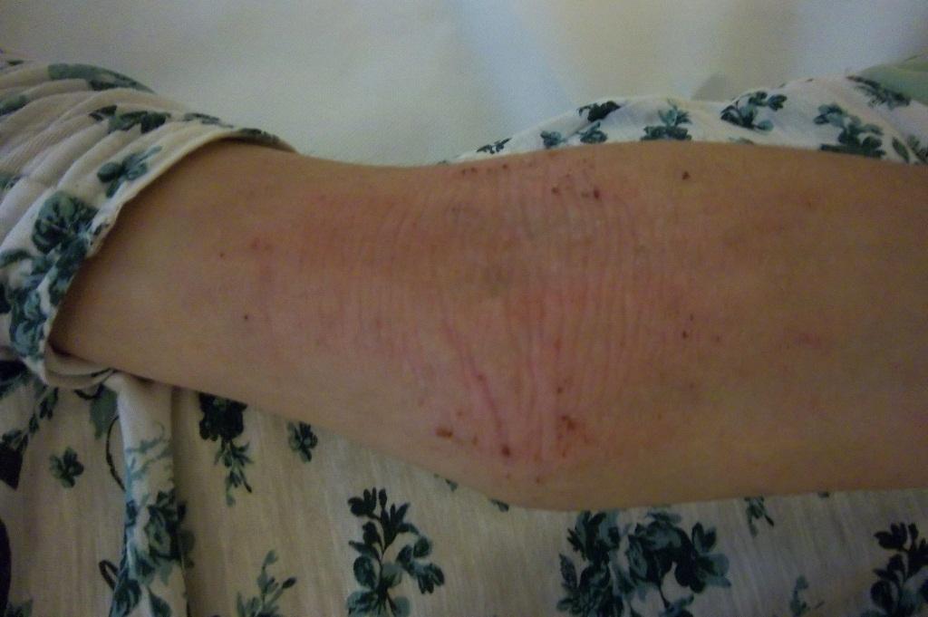 dermatite 11 anni)